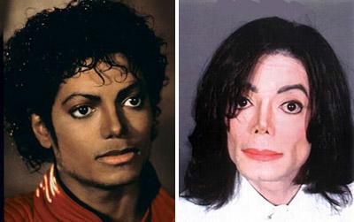 michael jackson facial surgeries